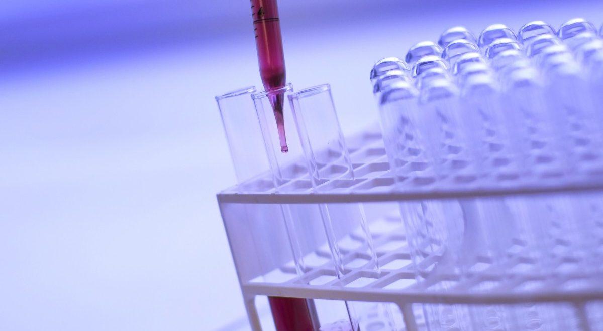 Un troisième cas de rémission d'un patient atteint du VIH en Allemagne ?