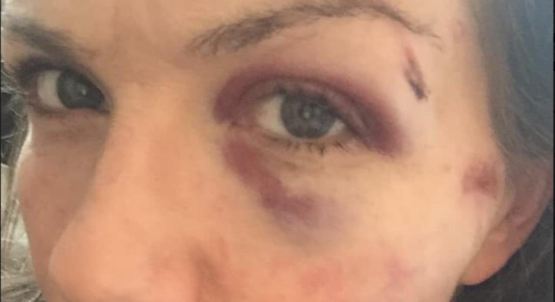 Enquête ouverte après une nouvelle agression lesbophobe à Paris