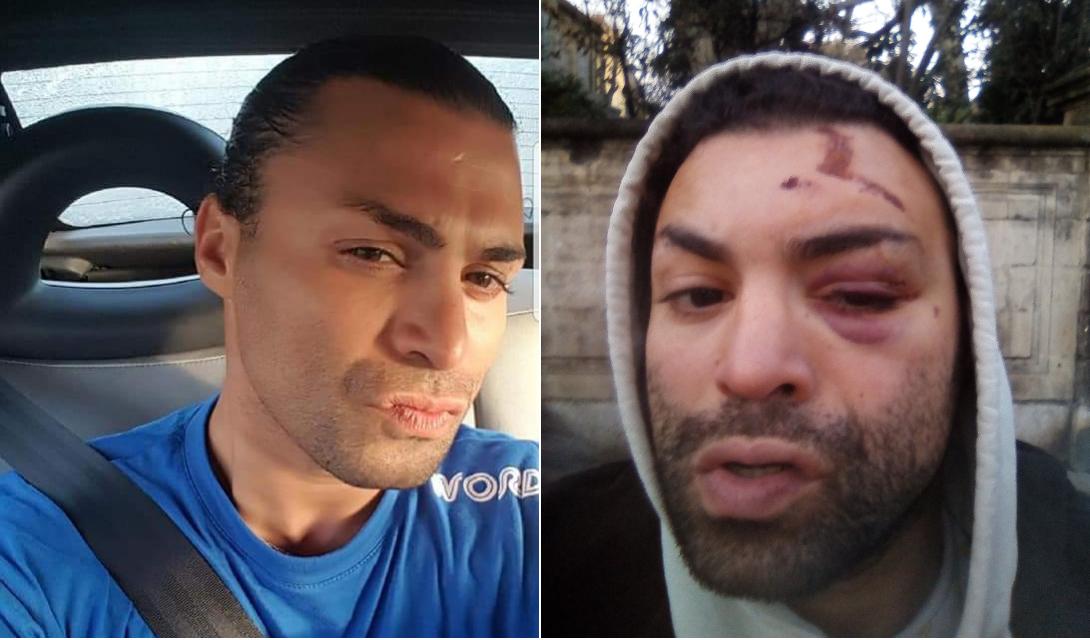«Le policier a dit que c'était de notre faute» : Safir raconte son agression homophobe à Lille